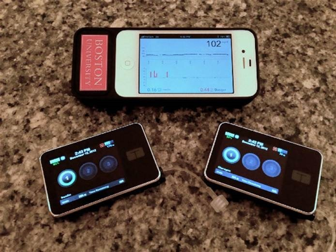 It's two pumps, one with insulin, one with glucagon, and an iPhone controlling them both