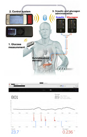 A diagram outlining the complete bionic pancreas system