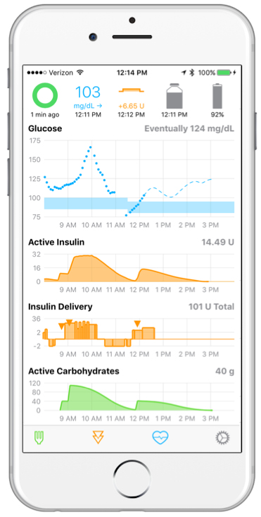 Open Source Artificial Pancreas on iPhone