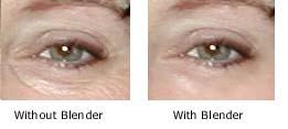 Wrinkles be gone
